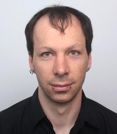 Ein Patient von Moser Medical vor seiner Haartransplantation männlichen Patienten mit längeren Haaren