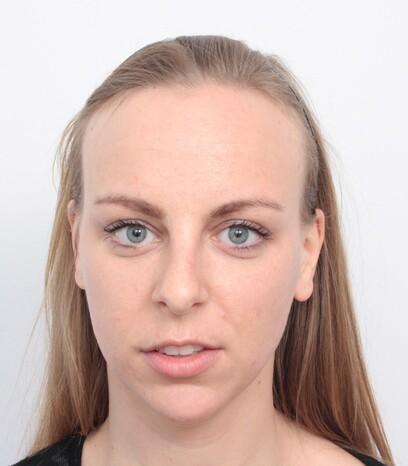 Eine junge Frau vor ihrer Haartransplantation bei hoher Stirnhaargrenze von Moser Medical