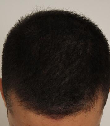 Ein zufriedener Patient von Moser Medical nach der Haartransplantation