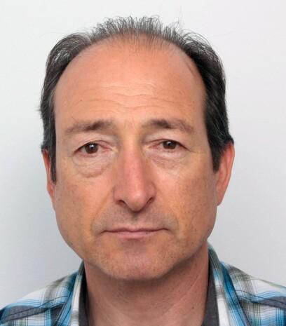 Ein Patient über 50 von Moser Medical vor seiner Haartransplantation der Tonsur, der Geheimratsecken und an der Stirn