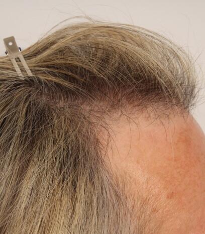Eine Patientin vor der Haartransplantation für Frauen mit der Streifenmethode von Moser Medical