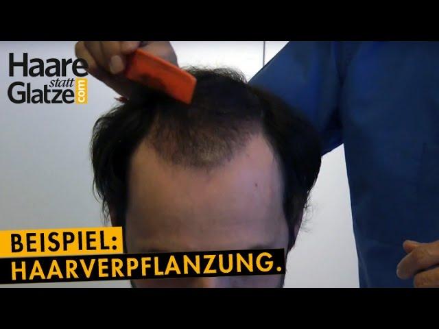5 Monate nach Haartransplantation bei Moser Medical - Zwischenergebnis