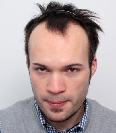 Ein Patient von Moser Kliniken vor der Verpflanzung von 2000 FUs bei den Geheimratsecken und der Stirn