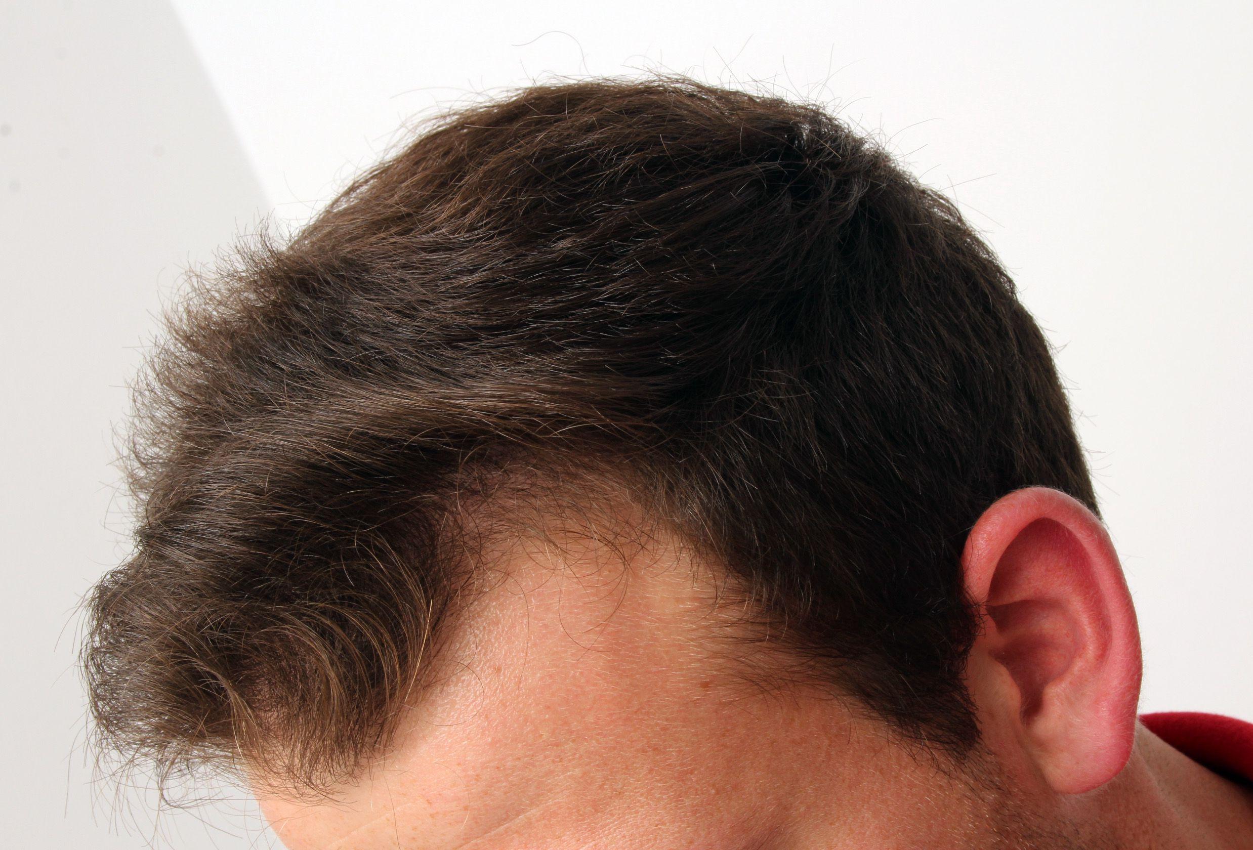 Haarverpflanzung bei jungem Mann mit dunklen Haaren vorher nachher