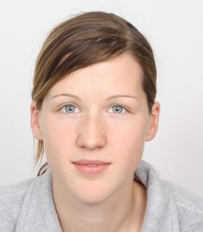 Eine junge Patientin von Moser Medical vor ihrer Haartransplantation nach einem Haarfärbe-Unfall