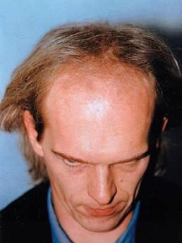 Peter Thurnhart vor der Behandlung