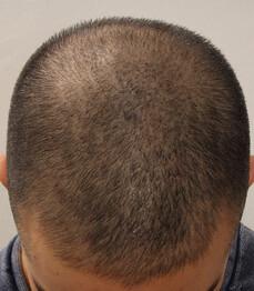 Ein Patient von Moser Medical vor der Haartransplantation