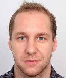 Vassil Nikolov prima del trattamento