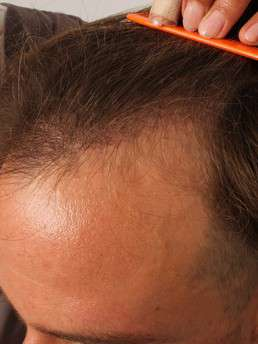 6 Tage nach der FUE-Haartransplantation