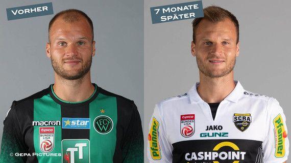 Matthias Maak 7 Monate nach der Haarverpflanzung