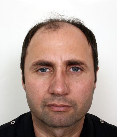 Ein ungarischer Moser Medical Patient vor seiner Haartransplantation