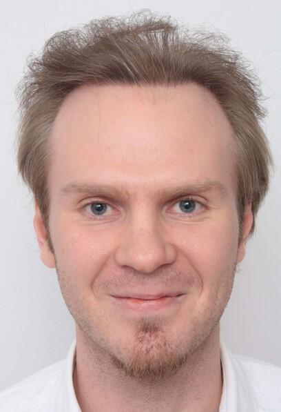 Ein Patient mit hellem Haar, der zuvor unter ausgeprägten kahlen Stellen am Oberkopf litt, nach seiner Haartransplantation bei Moser Medical