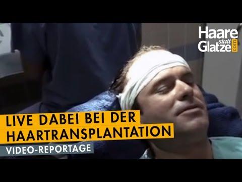 Manuel Horeth, DER MENTALIST: Live-Reportage seiner Haartransplantation