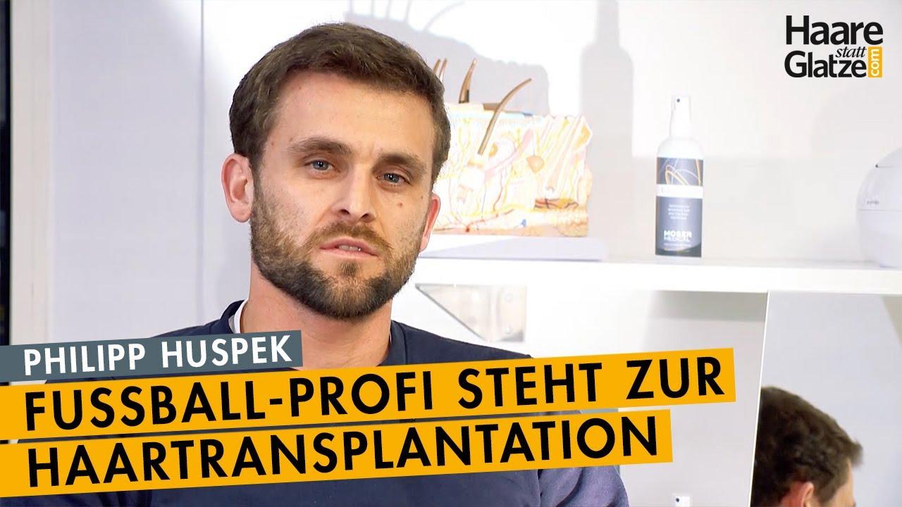 """""""Ich hab's gemacht!"""" - Profi-Fußballer Philipp Huspek steht zur Haartransplantation"""