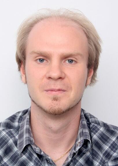 Ein Patient mit hellem Haar und ausgeprägten kahlen Stellen am Oberkopf vor seiner Haartransplantation bei Moser Medical