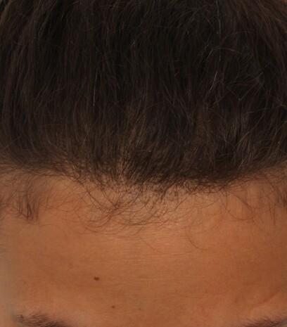 Eine Frau nach ihrer gelungenen Haartransplantation der Geheimratsecken bei Moser Medical