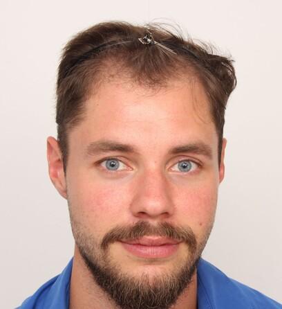 Ein Patient von Moser Medical vor der Haarverpflanzung am Haaransatz der Stirn