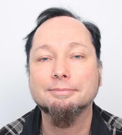 Ein Mann vor seiner Haartransplantation im Stirnbereich bei Moser Medical