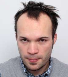 Daniel Schiefer prima del trattamento