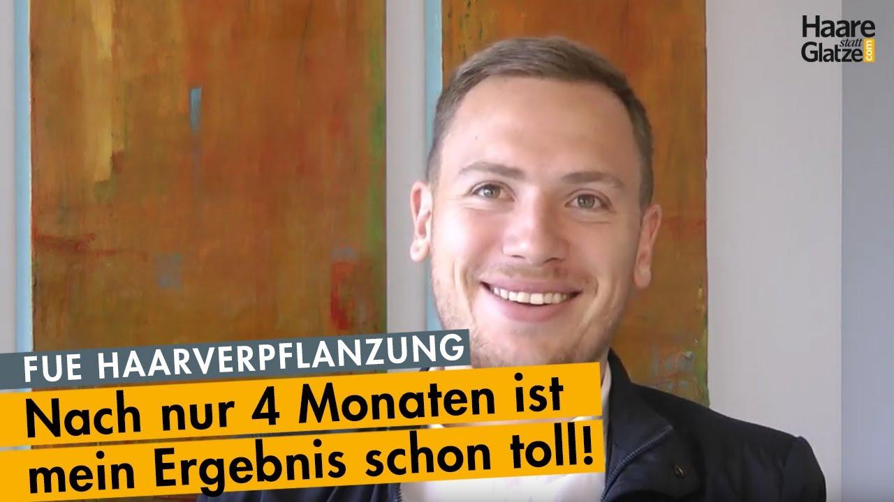 4 Monate nach FUE-Haarverpflanzung - Fußballprofi aus NÖ. #ichhabsgemacht