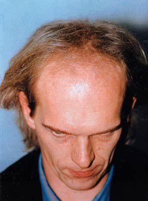 Ein Patient von Moser Medical vor seiner Haartransplantation im Jahr 1997