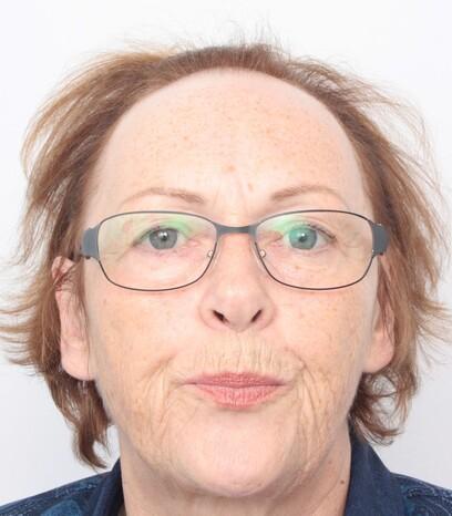 Eine Frau über 50 vor ihrer Haarverpflanzung bei Moser Medical