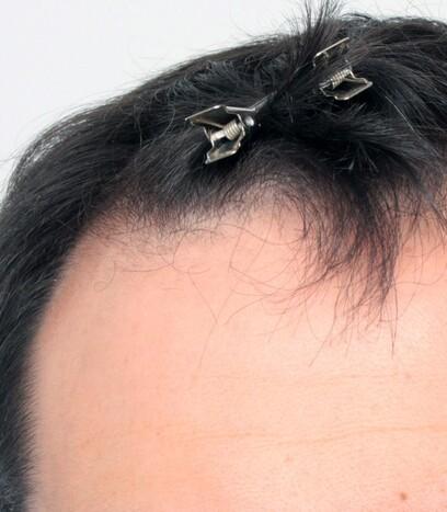 Ein Patient von Moser Medical vor seiner Eigenhaarverpflanzung im Stirnbereich und bei der Tonsur