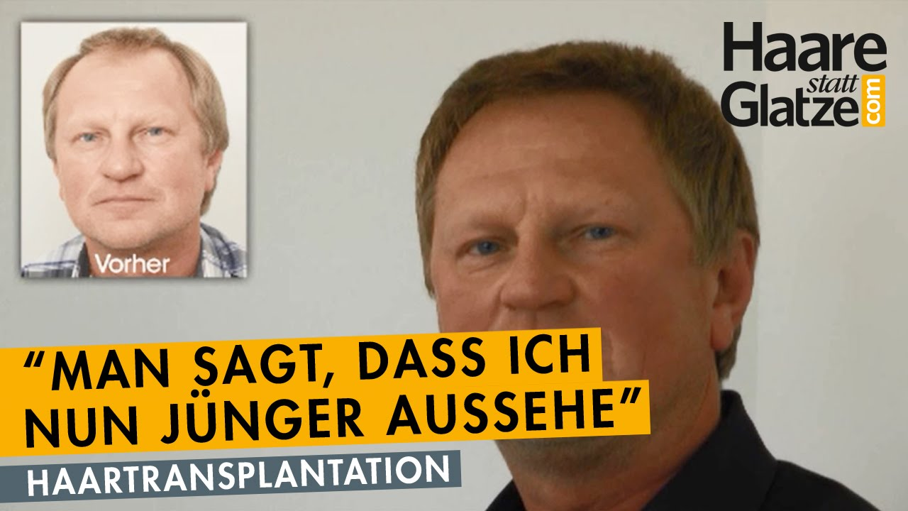 Michael V.: Haartransplantation bei Geheimratsecken