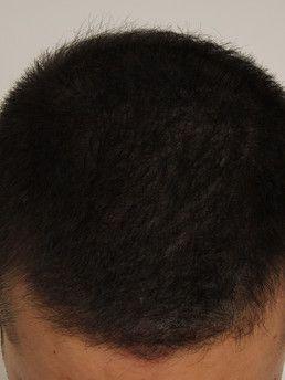 junger Mann nach Mikropigmentierung (STP)