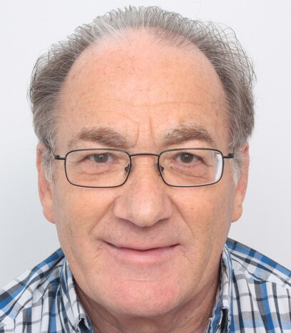 Ein Patient über 50 vor seiner Haartransplantation am Oberkopf und bei der Tonsur von Moser Medical