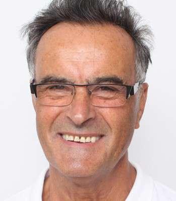 Josef Hackl dopo il trattamento
